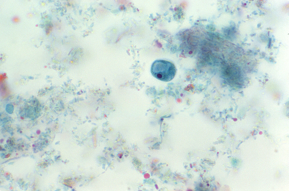 This trichrome-stained photomicrograph depicts a single Iodamoeba buetschlii parasitic cyst within which a large achromatic glycogen vacuole