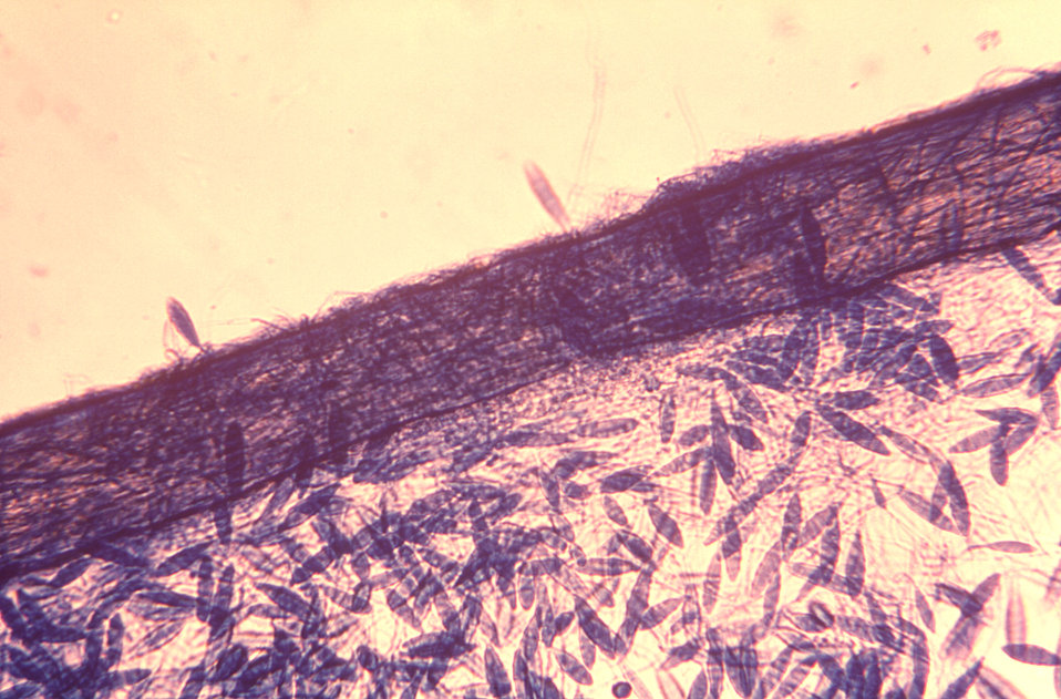 Under a magnification of 200X, this photomicrograph depicted a large number of oblong-shaped Microsporum gypseum macroconidia that were atta
