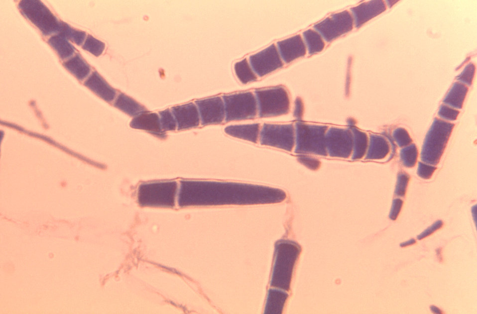 Under a high magnification of 970X, this photomicrograph depicted some of the ultrastructural features of numerous oblong-shaped Microsporum