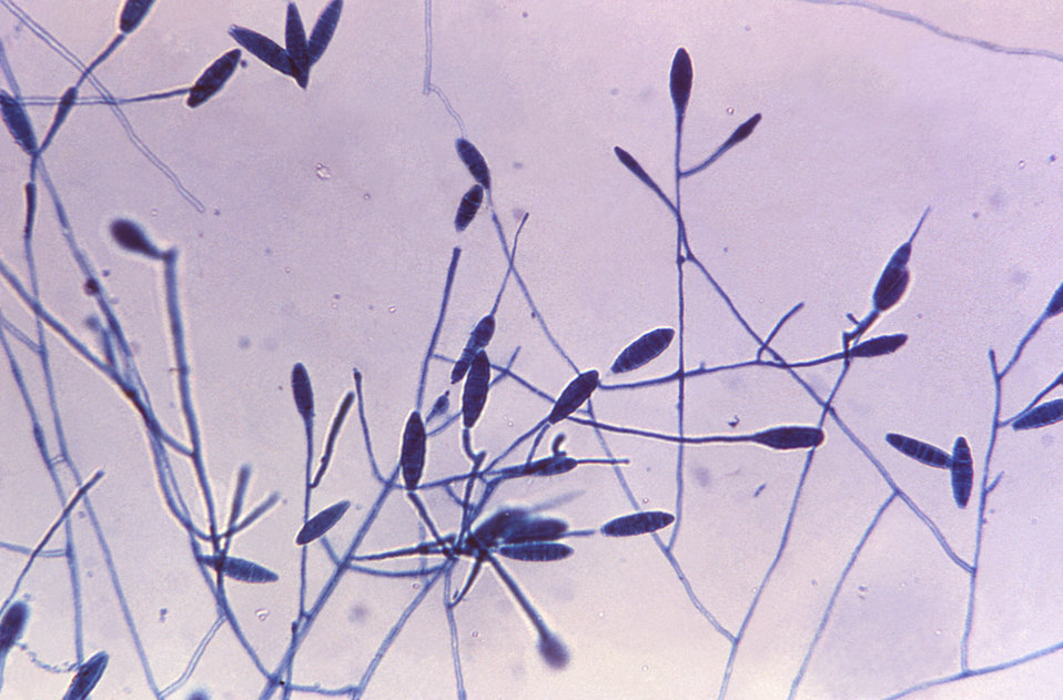 Magnigied 240X, this photomicrograph shows the spindle-shaped macroconidia of the fungus Microsporum gypseum.