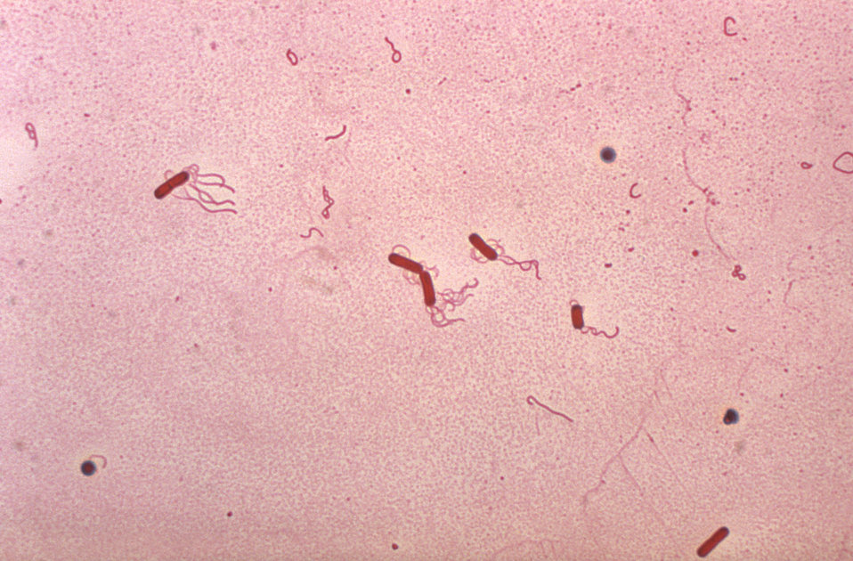 Bacillus brevis.  flagella stain.