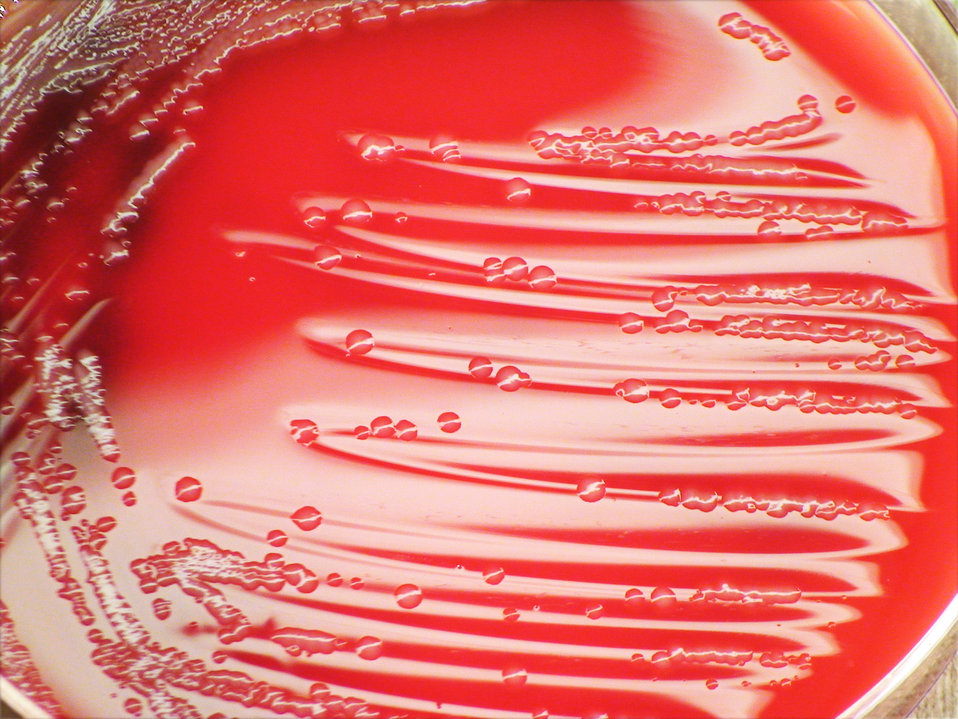 A closer view of PHIL 12453, this photograph depicts the colonial morphology displayed by Gram-negative Morganella morganii bacteria, which