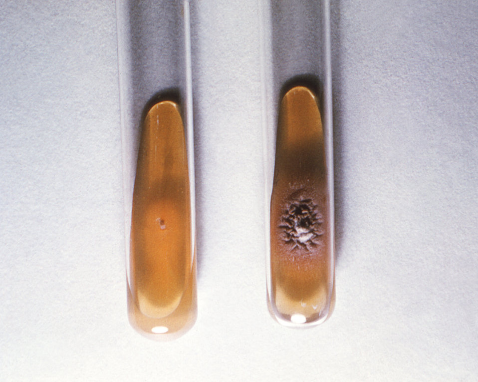 This image depicts two slant cultures, each containing an agar-based growth medium, which had been inoculated with Trichophyton violaceum fu