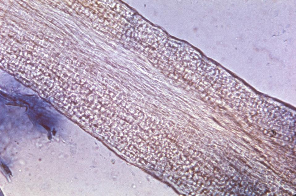 Magnified 200X, this photomicrograph depicts the histopathologic changes in the structure of a hair follicle, in a patient with ringworm, in