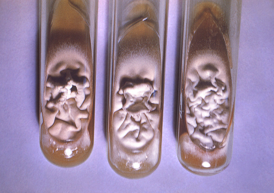 This image depicts three slant culture test tubes, all of which had been inoculated with Trichophyton tonsurans fungal organisms derived fro
