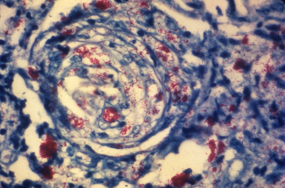 This photomicrograph of a skin tissue sample from a patient with leprosy revealed a cutaneous nerve, which had been invaded by numerous Myco